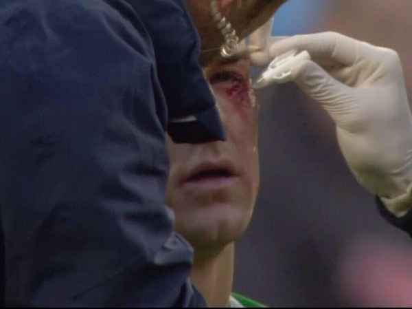 Ouch! Man Citys Joe Hart got a bloodied eye after a nasty clash with Palaces CamJam [Pictures & GIF]