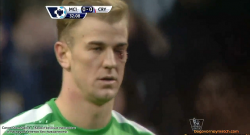 joe-hart-face